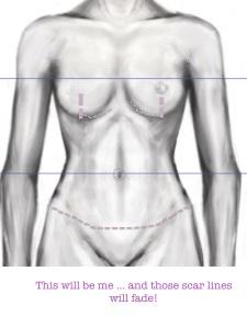 torso diagram 28.3.14 JPEG