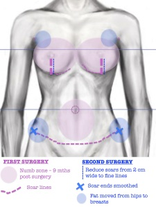 torso diagram 9 mths
