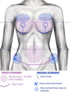 torso diagram after 2nd surgery